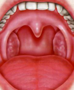 うがい 膿栓 膿栓の取り方はうがいでのどの奥から唾液を出す